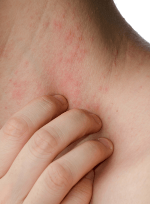 rash around anus and perimenopause